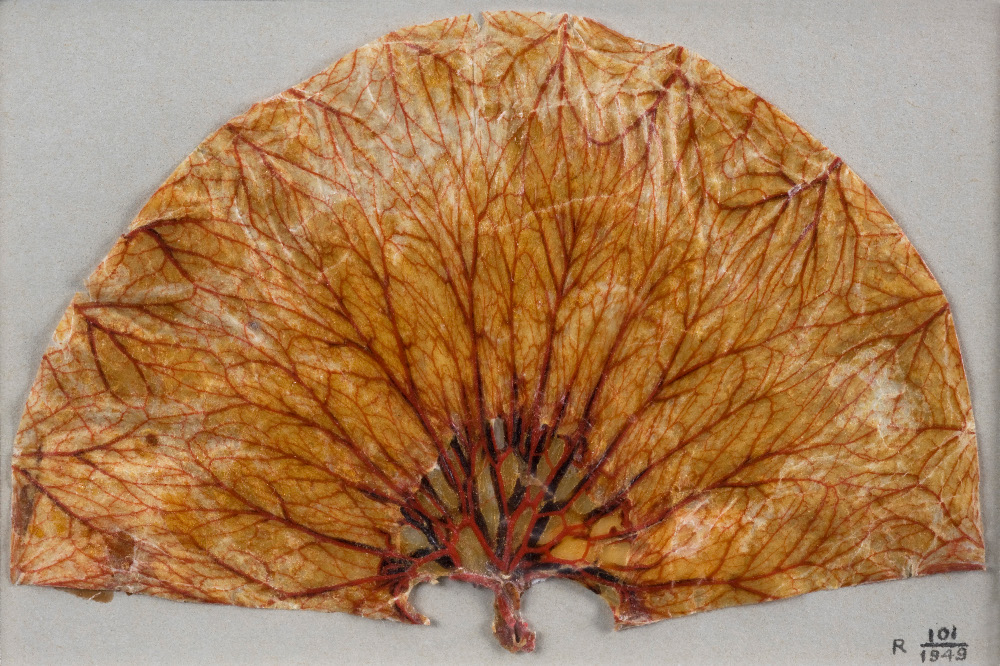 A human stomach from the 19th century - gruesome!