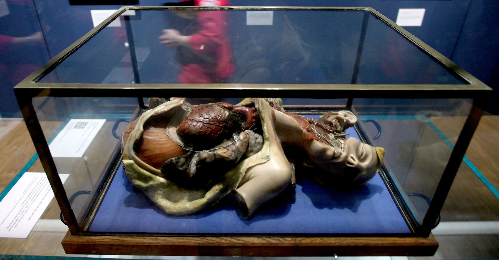 Doctors, Dissection and Resurrection Men exhibition