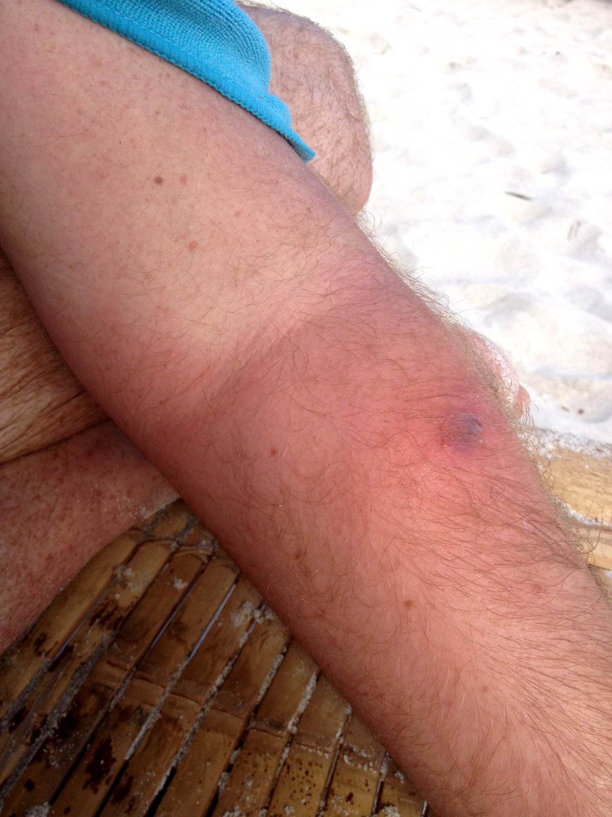 Daves infected arm Double-Barrelled Travel